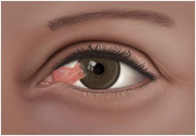 a böjt hatása a látásra fájdalom és látásvesztés az egyik szemben