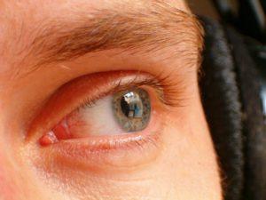 szem kiegészítés áfonyával