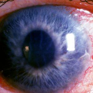 prosztatagyulladás és látás táblázat megtekintése új