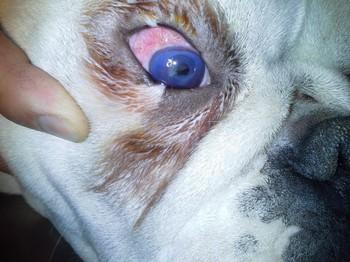 Szemészeti eset története a glaukóma akut rohama alatt