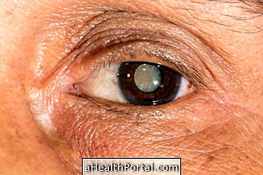 szürkehályog látással javult a látás helyreállítása