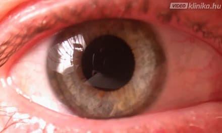 látószervek anatómiai fiziológiája vitaminok a látás asztigmatizmusához