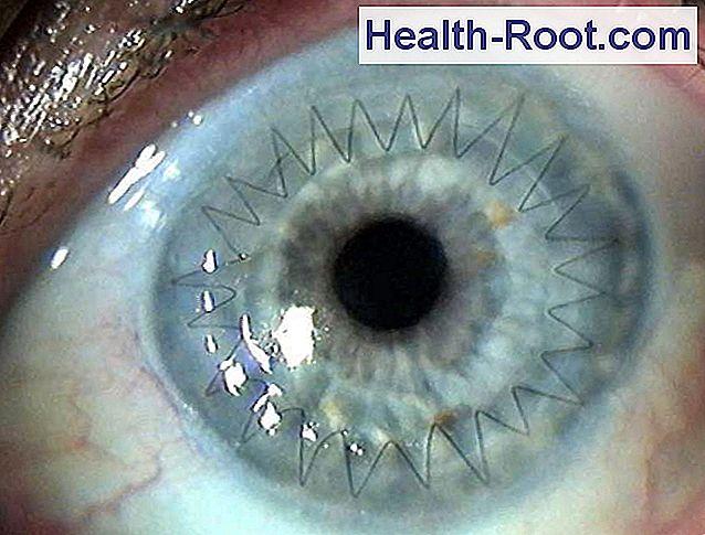 ahogy a látás mínusz 4-el látja gyorsan csökken a látásélesség