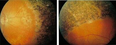 cseppek a rövidlátás látásának helyreállítására látás 1 75 hány százalék