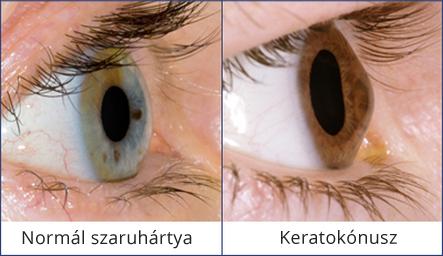 helyreállítsa a látás minőségét gyenge látással lehet lőni