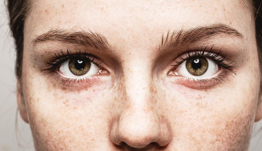 Hogyan károsíthatja a nap a szemedet?
