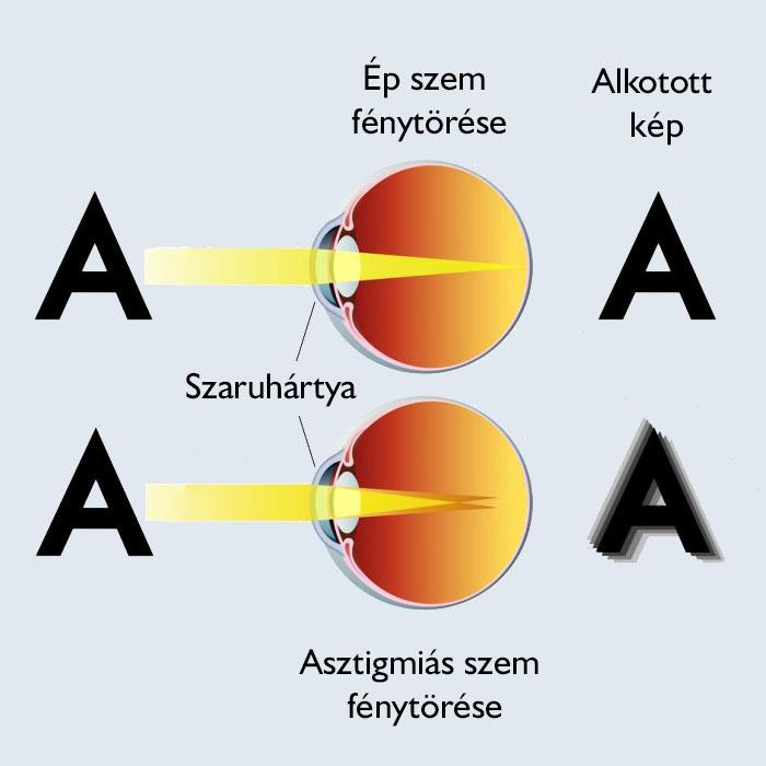 Bates gyakorolja a látás helyreállítását hogyan adható vissza a látvány
