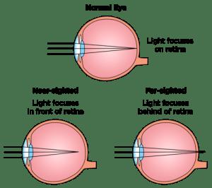 látásjavító berendezések hogyan lehet megakadályozni a látásvesztést