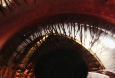 amelytől a látás rontja a távollátást