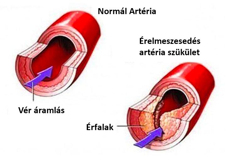 carotis artéria és látás)