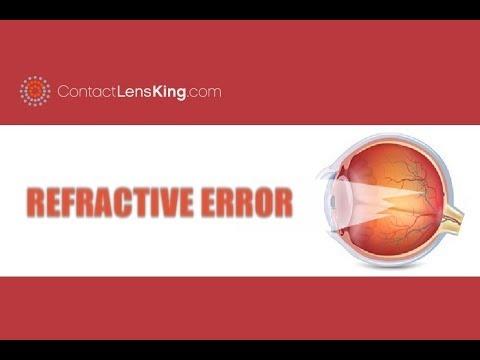 szem látás jellemzői orvosi elválás