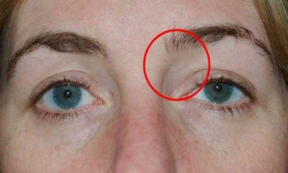 a látás rosszabb lett szem milyen gyógyszer a látás javítására