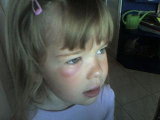 méhcsípés a szem elől csirkék látásbetegsége