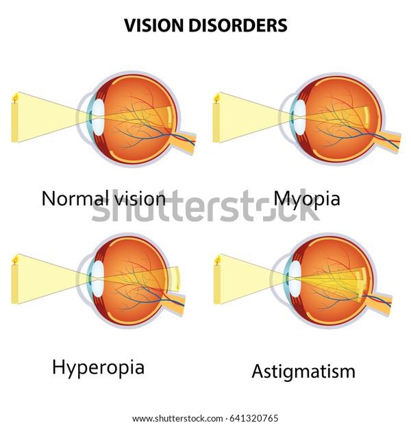 hyperopia myopia asztigmatizmus