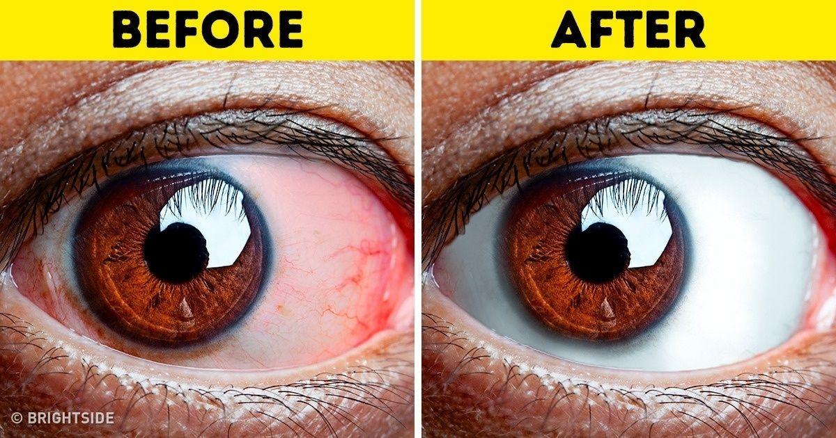 szemképzés, hogyan lehet visszanyerni a látást