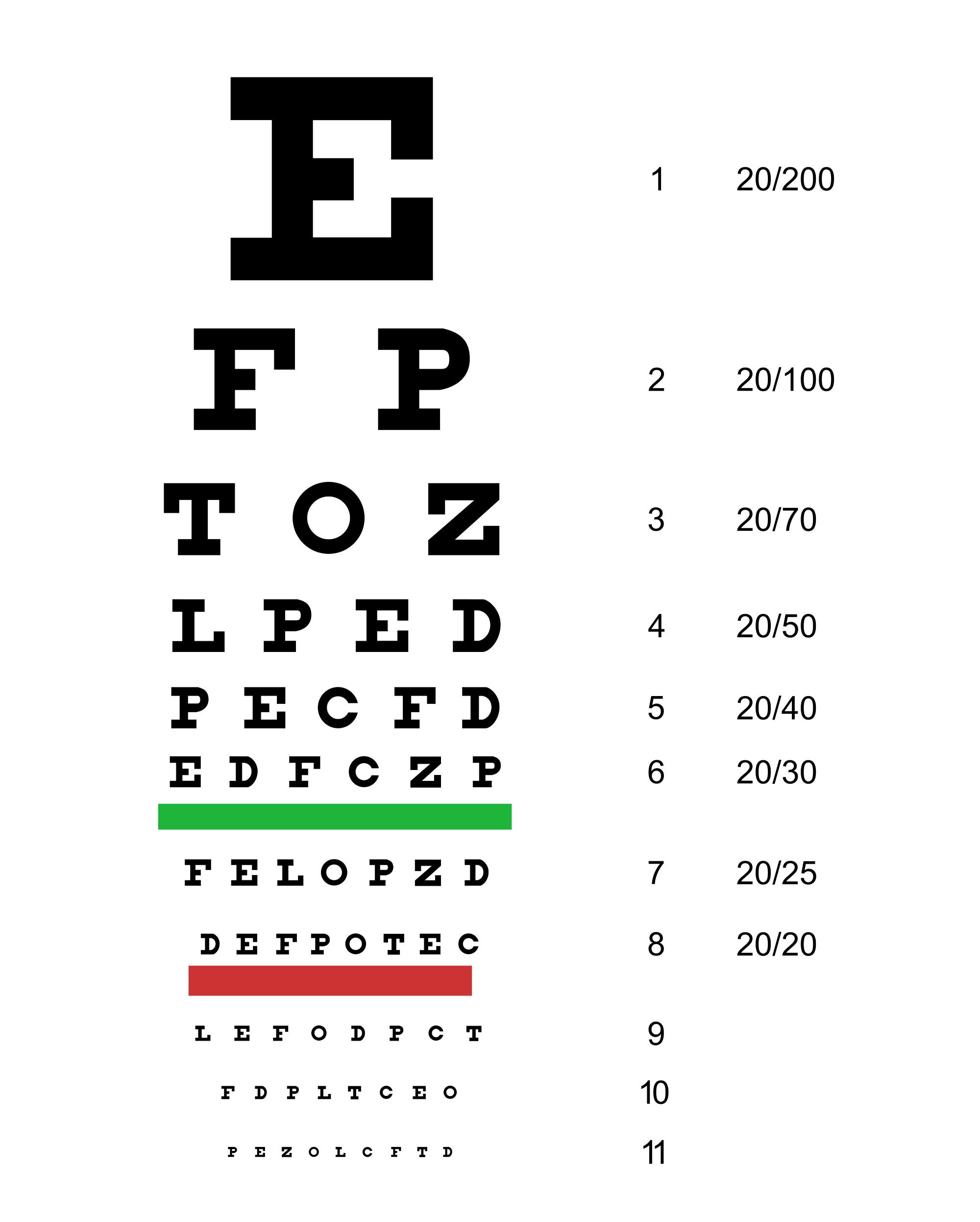 a látásélesség 1 3. látás, hogyan kell kezelni