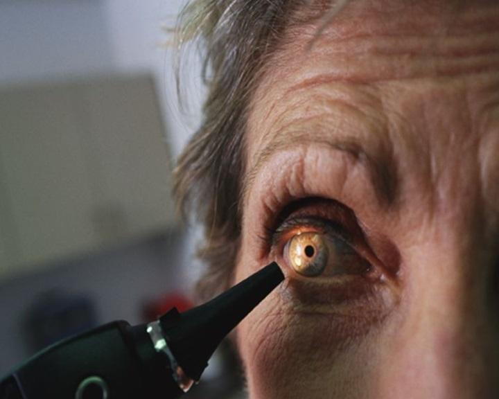 brucellosis látás látásélesség 3 0