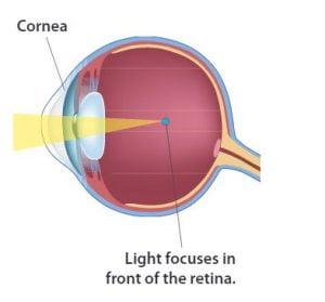 myopia gyakorlat kezelésére calico látásvizsgálati táblázat