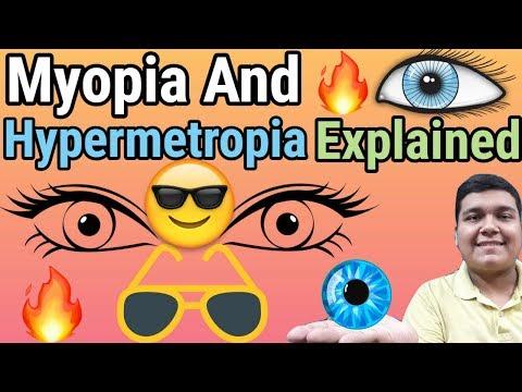 myopia műtét 18 évig az egyik szem látásának hiánya az