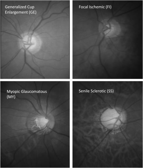 műtét a látás romlásának megállítására