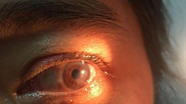 múmia és látás
