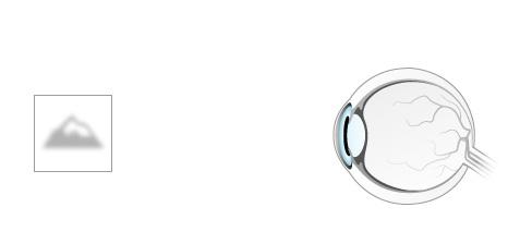 progresszív rövidlátás torna vannak-e cseppek a látás javítására