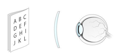 jobb látás 40 évesen a szem myopia diszfunkciója