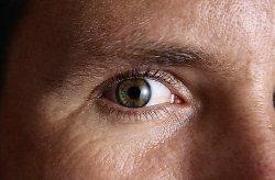 a beteg látása