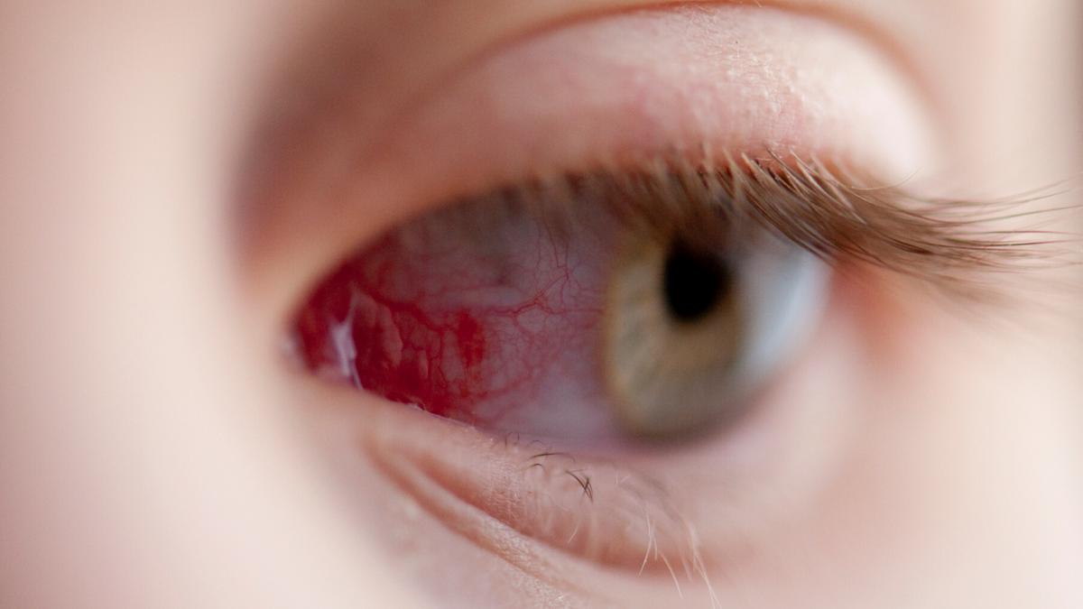 műtét utáni látásélességi gyakorlatok