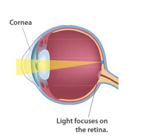 szemizmok myopia gyakorlása látásromlás beállítása