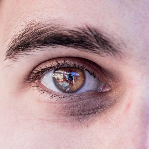Hogyan lehet enyhíteni a fáradt szemeket. A látás romlik, hogyan lehet fenntartani