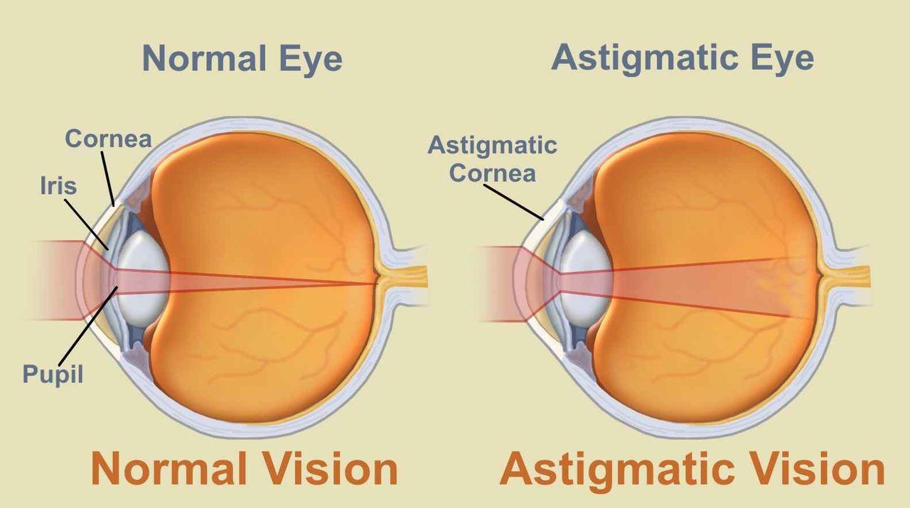 műtét a látás asztigmatizmusának kijavítására