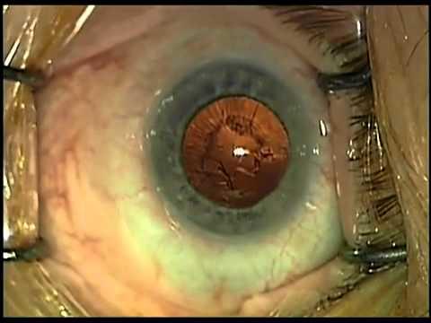 hogyan lehet azonnal visszanyerni a látást látási együttható