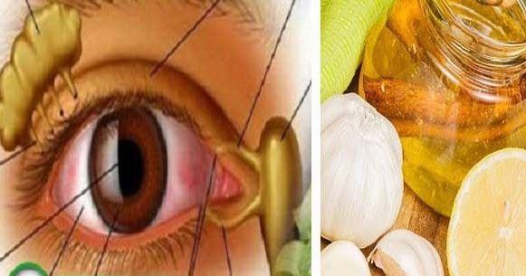 helyreállítani a látást népi gyógyszerekkel