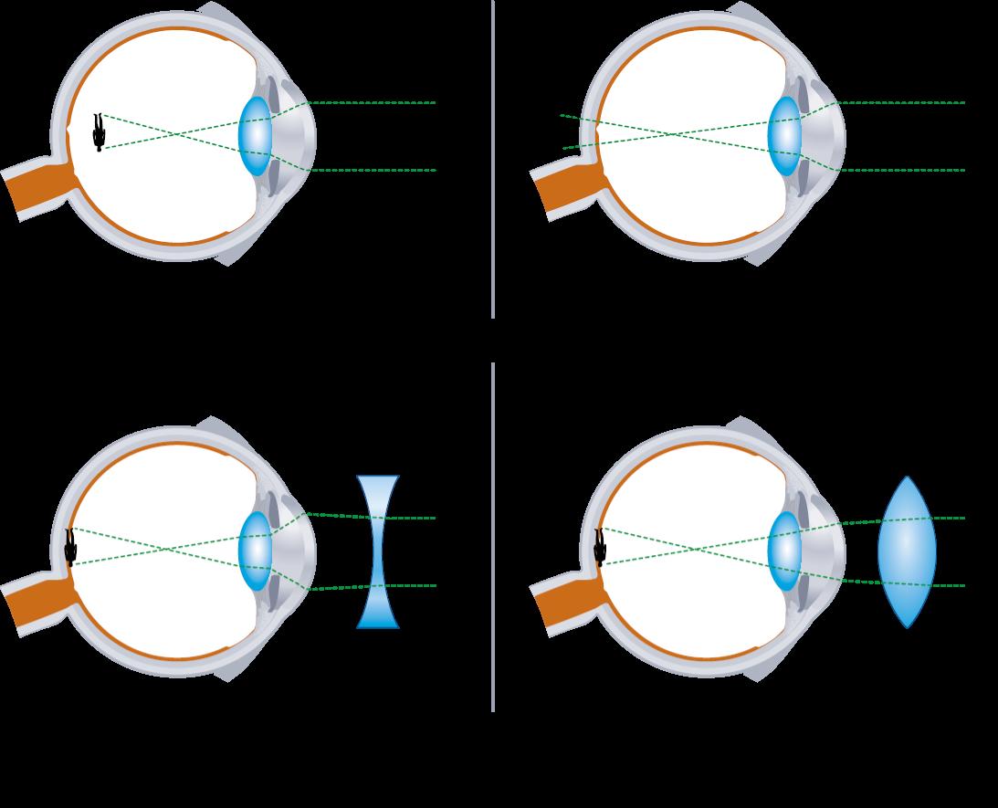 hogyan lehet javítani a látási izmokat