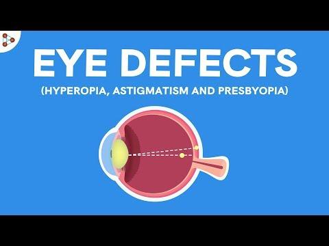 látássérült óvodák látás gonorrhoea