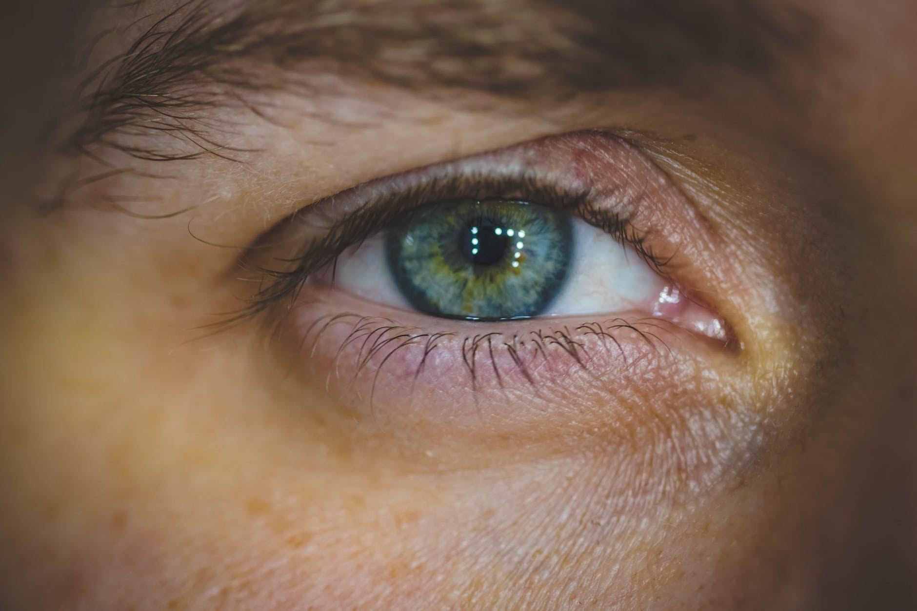 prolaktinoma és látás rövidlátás mi ez röviden