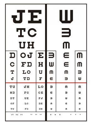 látást edzünk genetika myopia