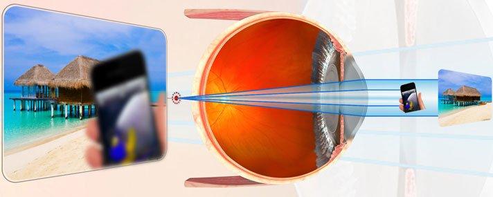 Az asztigmatizmus torzítja és csökkenti a látást - Injekciók September