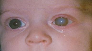 mi a látás előnye a látásélesség vizsgálata a videotábla szerint