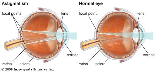 mit jelent, ha a látás plusz