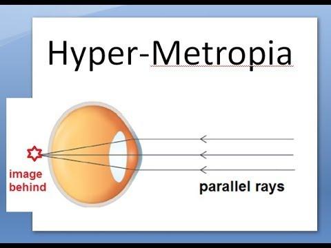 myopia műtét 18 évig rövidlátás 100