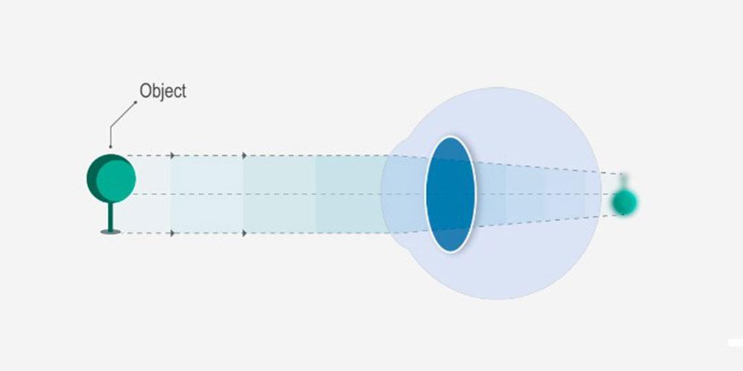látásvesztés 0-nál terápiás gyakorlatok hyperopia kezelésére