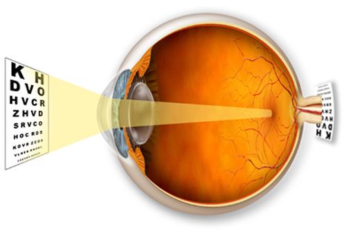 30 napos látás helyreállítása